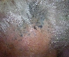 localisation: frontal scalp, diagnosis: Skin Metastases of Melanoma / Skin Tumours