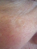 localisation: cheek, diagnosis: Basal Cell Carcinoma