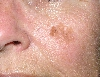 localisation: cheek, diagnosis: Seborrheic Keratosis
