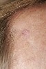 localisation: forehead, diagnosis: Basal Cell Carcinoma