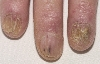 localisation: finger, fingernail, diagnosis: Radiodermatitis, Chronic, Onychomycosis