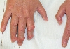 localisation: finger, diagnosis: Calcinosis Cutis