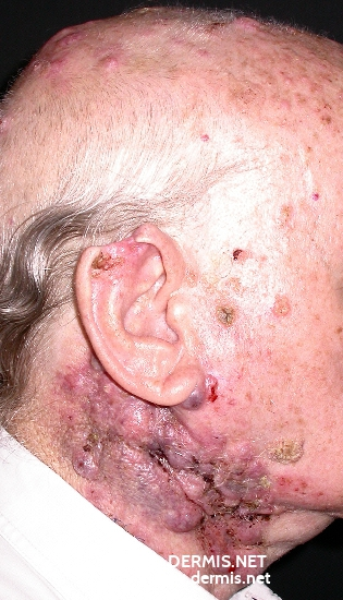 localisation: neck scalp diagnosis: Skin Metastases of Tumours of Internal Organs