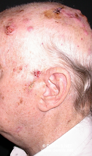 localisation: scalp diagnosis: Skin Metastases of Tumours of Internal Organs