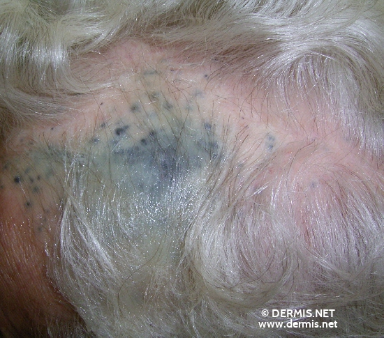localisation: cuir chevelu diagnostic: Skin Metastases of Melanoma / Skin Tumours