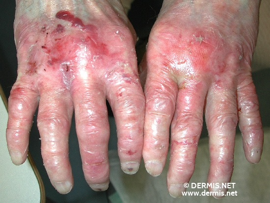 localisation: hands diagnosis: Epidermolysis Bullosa Acquisita