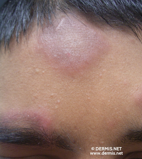 localisation: forehead diagnosis: Lupus Erythematosus Tumidus