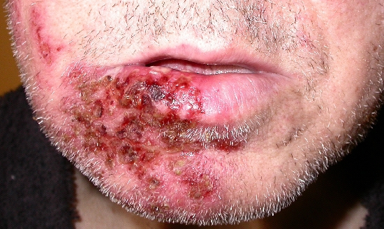 localisation: lower lip chin angle of the mouth diagnosis: Herpes Zoster
