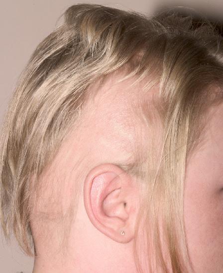 le psoriasis cuir chevelu