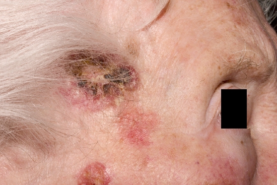 localisation: temples diagnosis: Squamous Cell Carcinoma Actinic Keratosis