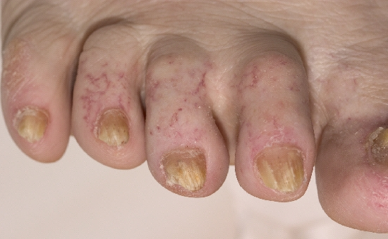 localisation: toe toenail diagnosis: Radiodermatitis, Chronic Onychomycosis