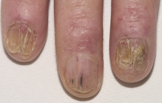 localisation: finger fingernail diagnosis: Radiodermatitis, Chronic Onychomycosis