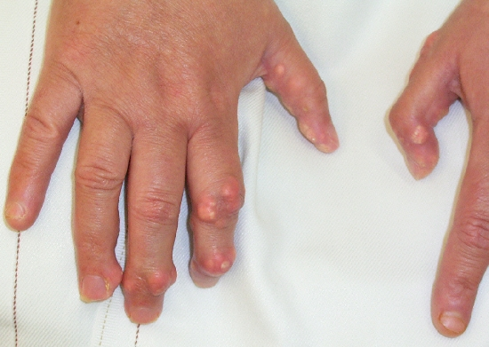 localisation: Finger Diagnose: Calcinosis cutis