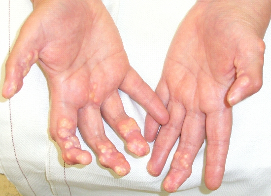 calcinosis pictures