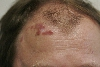 localisation: forehead, diagnosis: Facial Granuloma with Eosinophilia