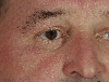 localisation: eyelids, around the eyes, diagnosis: Hidrocystoma