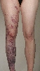 localisation: legs, diagnosis: Klippel-Trenaunay-Weber Syndrome