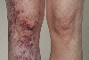 localisation: knee, diagnosis: Klippel-Trenaunay-Weber Syndrome