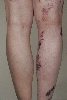 localisation: lower leg, diagnosis: Klippel-Trenaunay-Weber Syndrome
