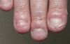 localisation: finger, diagnosis: Chilblain Lupus