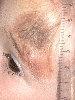 localisation: forehead, diagnosis: Nevocytic Nevus