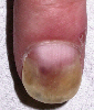 localisation: finger, diagnosis: Psoriasis Vulgaris, Nail Changes