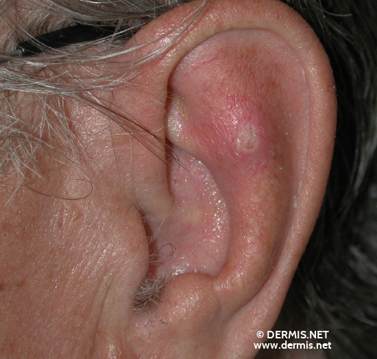 localisation: auricle diagnosis: Keratoacanthoma