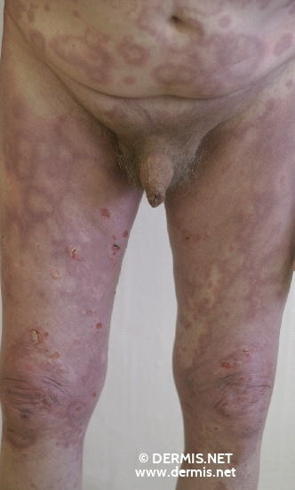 localisation: upper leg lower abdomen diagnosis: Bullous Pemphigoid