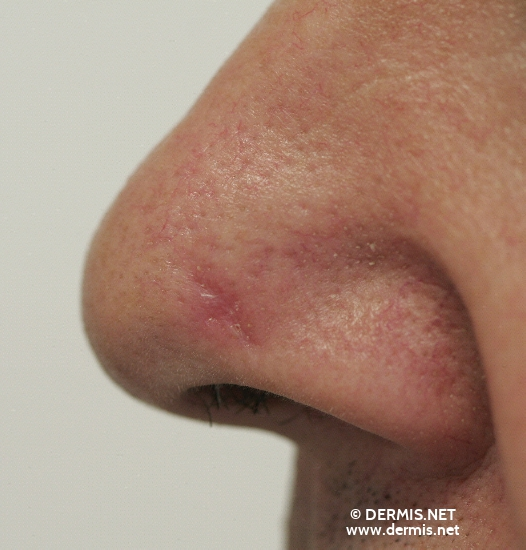 localisation: nose diagnosis: Basal Cell Carcinoma