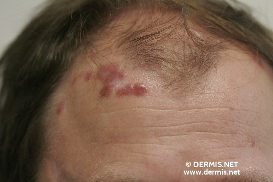 localisation: forehead diagnosis: Facial Granuloma with Eosinophilia