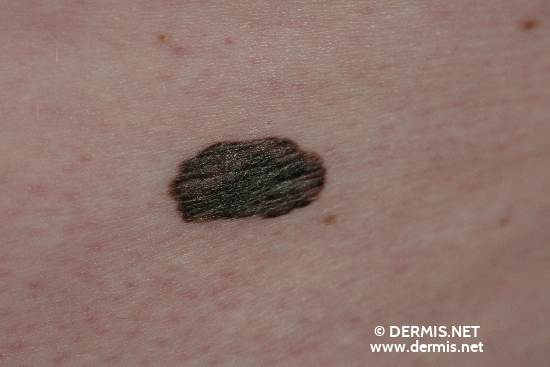 localisation: gluteal diagnosis: Superficial Spreading Melanoma (SSM)