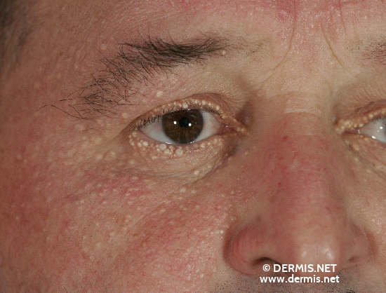 localisation: eyelids around the eyes diagnosis: Hidrocystoma