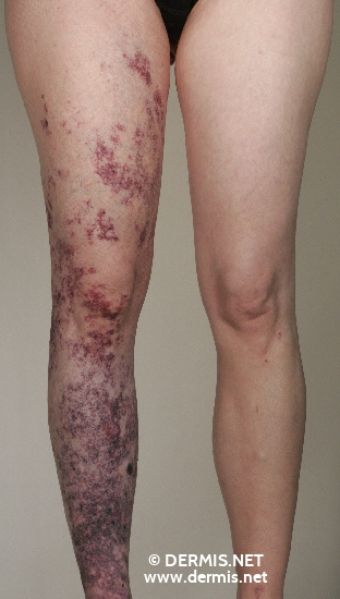 localisation: legs diagnosis: Klippel-Trenaunay-Weber Syndrome