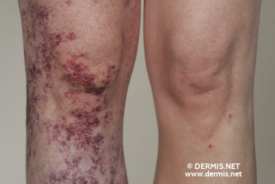 localisation: knee diagnosis: Klippel-Trenaunay-Weber Syndrome