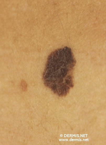 localisation: lower abdomen [n/a] diagnosis: Superficial Spreading Melanoma (SSM) Nevocytic Nevus