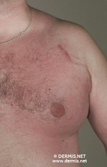 localisation: chest diagnosis: Erysipelas Melanomatosum
