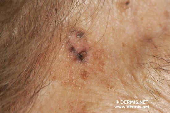 localisation: temples diagnosis: Pigmented Basal Cell Carcinoma Lentigo Senilis