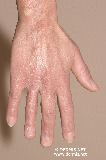 localisation: back of the hands diagnosis: Morphea, Linear