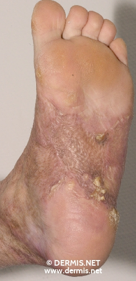 localisation: sole diagnosis: Combustion, Scars Verruca Vulgaris