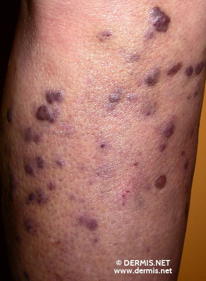 localisation: lower leg diagnosis: Kaposi's Sarcoma