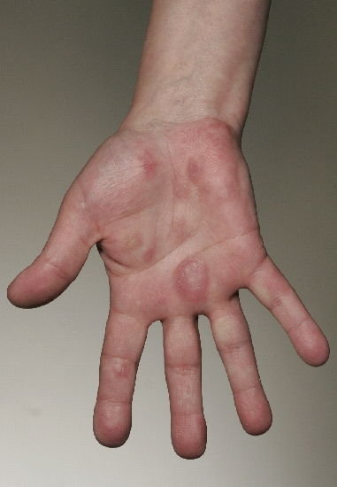 localisation: palms finger diagnosis: Chilblain Lupus