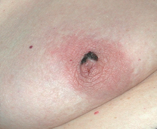 localisation: mamilo diagnóstico: Melanoma extensivo superficial (MES)