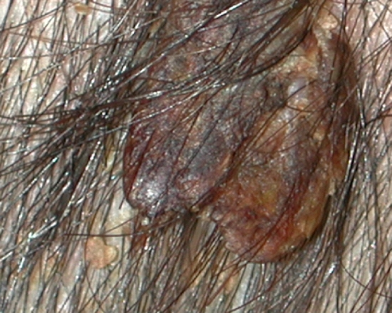 localisation: scalp diagnosis: Nevocytic Nevus