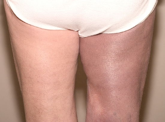localisation: upper leg diagnosis: Acrodermatitis Chronica Atrophicans Herxheimer