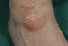 localisation: back of the feet, diagnosis: Ganglion