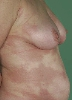 localisation: flank, diagnosis: Disseminated Lokalized Scleroderma