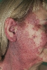 localisation: face, diagnosis: Eruptive Angiomatosis