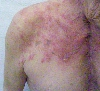 localisation: upper chest, diagnosis: Herpes Zoster