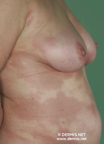 localisation: flank diagnosis: Disseminated Lokalized Scleroderma