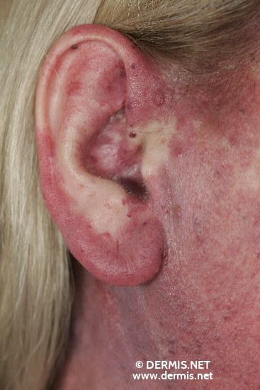 localisation: temples diagnosis: Eruptive Angiomatosis
